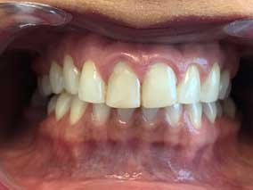 Best Dentist In Etobicoke - Dental Veneers Before