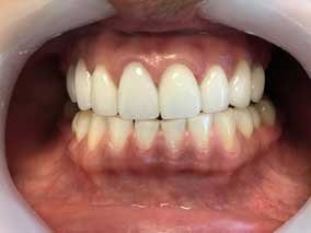 Dentist Etobicoke - Dental Veneers After