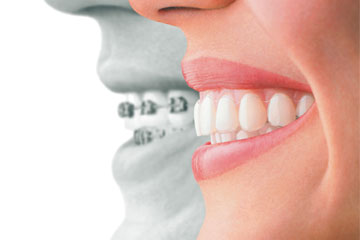 Dentist Near Me - Get Your Teeth In The line And Arrange Through Our Braces Services