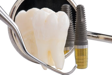 Best Dentist In Etobicoke - Dental Implant Service