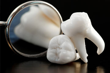Etobicoke Dentistry - Wisdom Tooth Extraction Service
